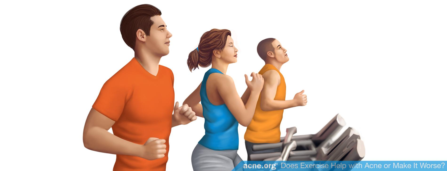 Does Exercise Help with Acne or Make It Worse?