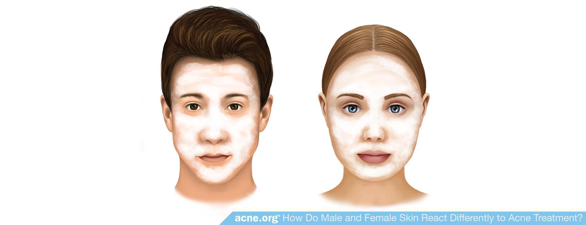 Treating Acne in Male Vs. Female Skin