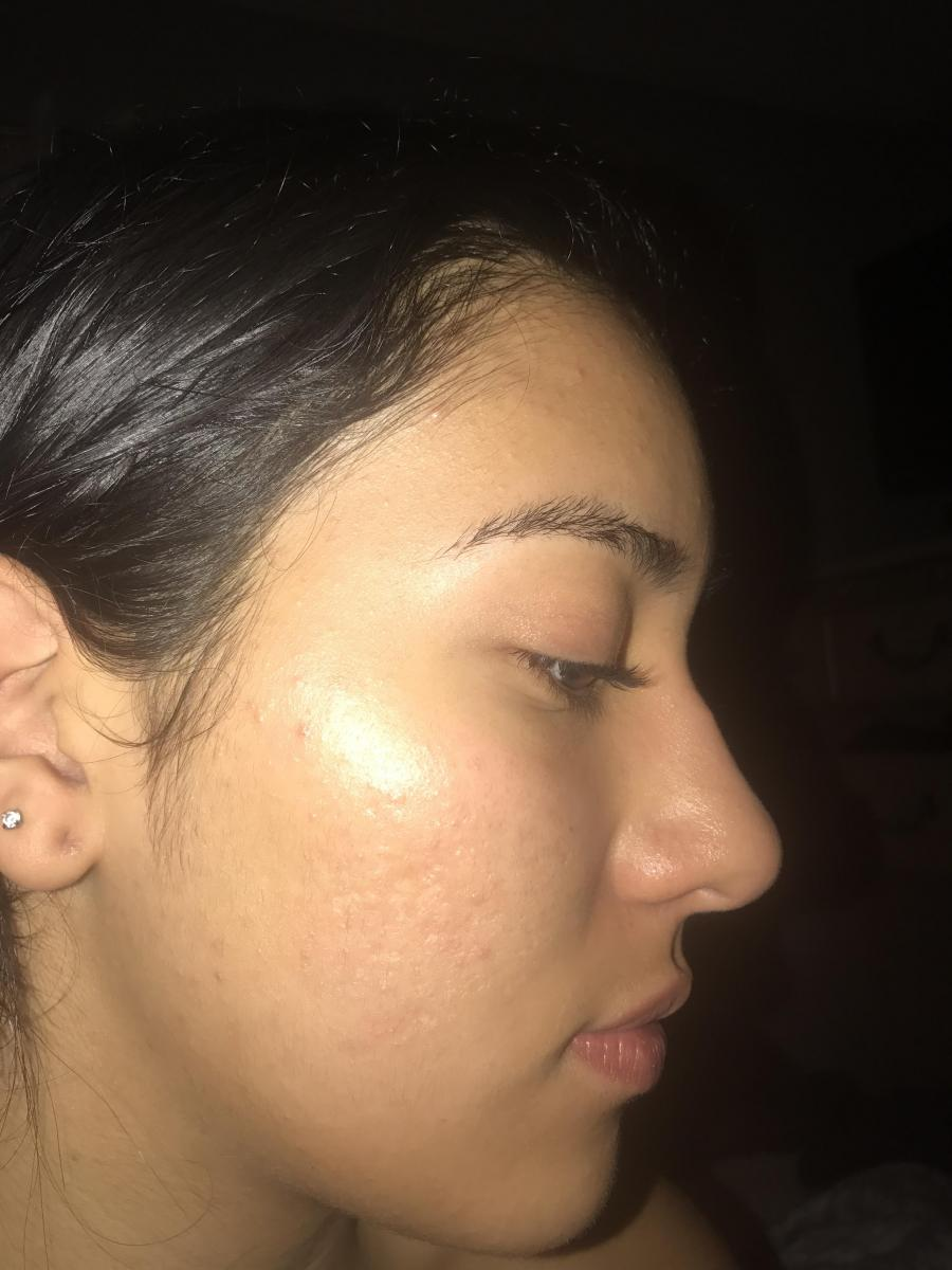 Severe acne to clear skin