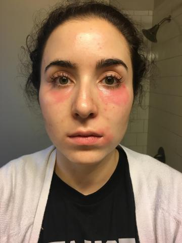 Acne.org Experience - Caution!