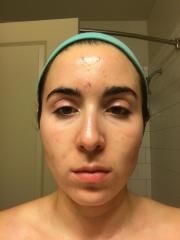 Start of Acne.org Regimen - January 17, 2017
