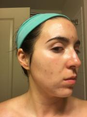 Start of Acne.org Regimen January 17, 2017