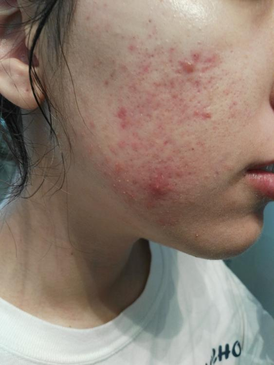 accutane blackheads coming out