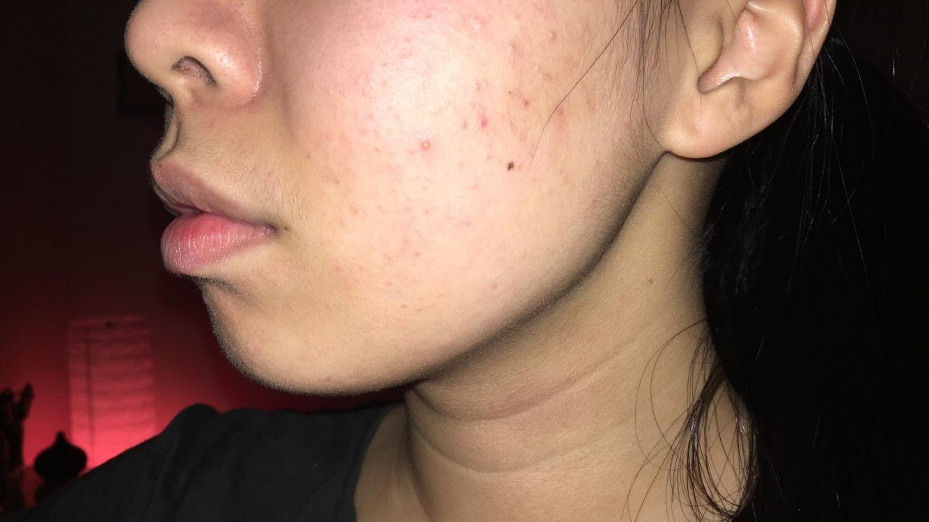 Communication on this topic: Everything You Need to Know about Hyperpigmentation, everything-you-need-to-know-about-hyperpigmentation/