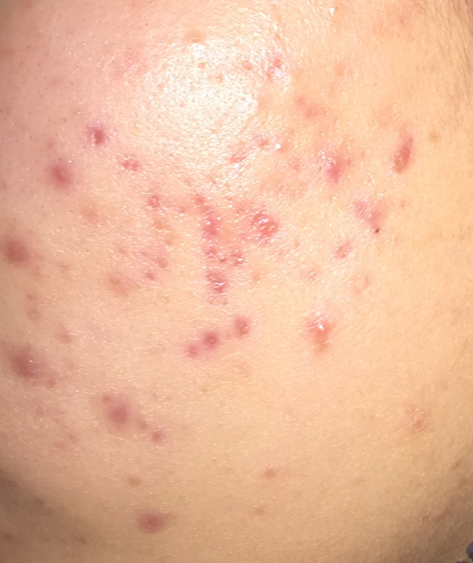 Red marks on cheek that won't go away? - Hyperpigmentation