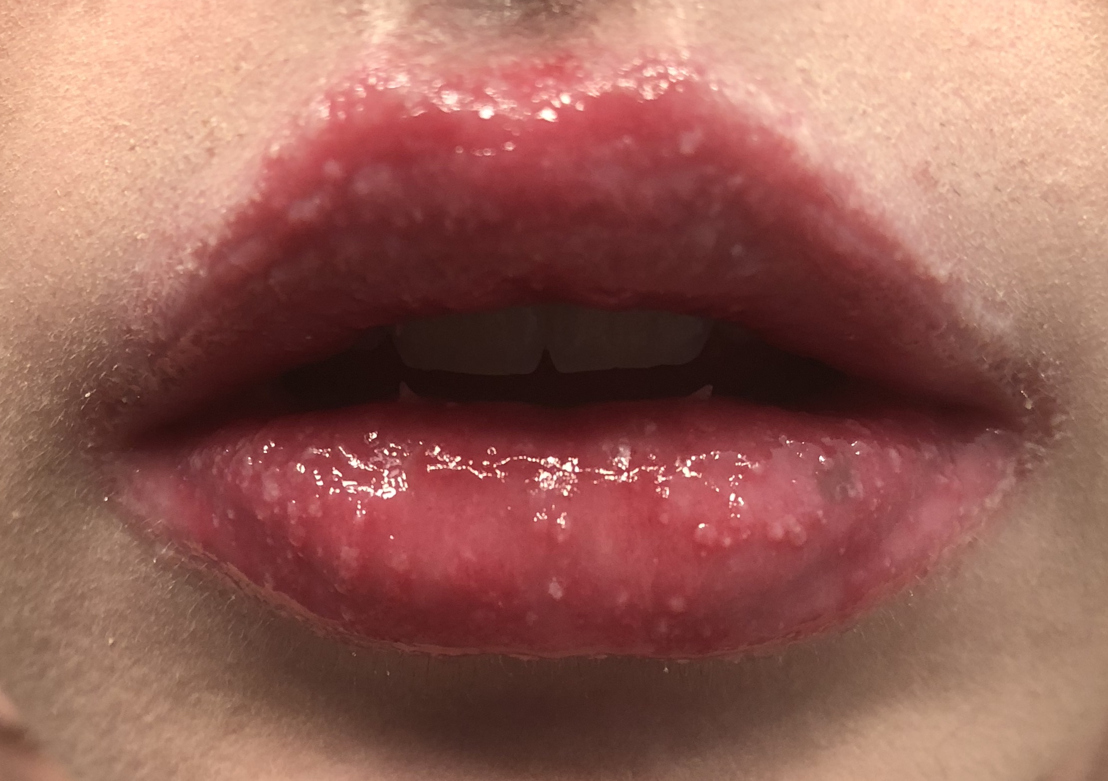 How to Get Rid of Cold Sores: Causes, Treatment, and More — Teeth ...
