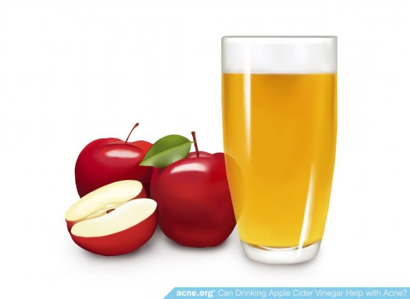 Apples Next to Apple Cider Vinegar in Glass