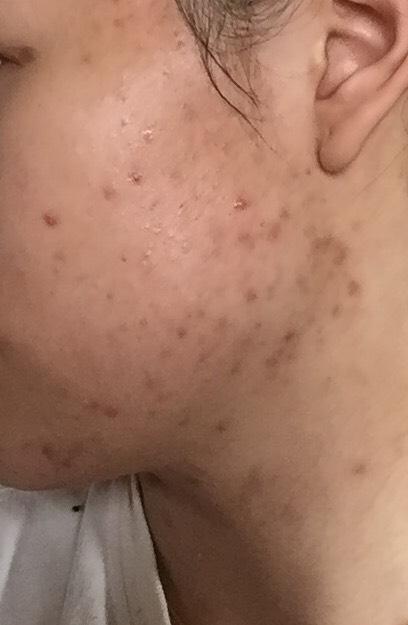 3 weeks (left side)