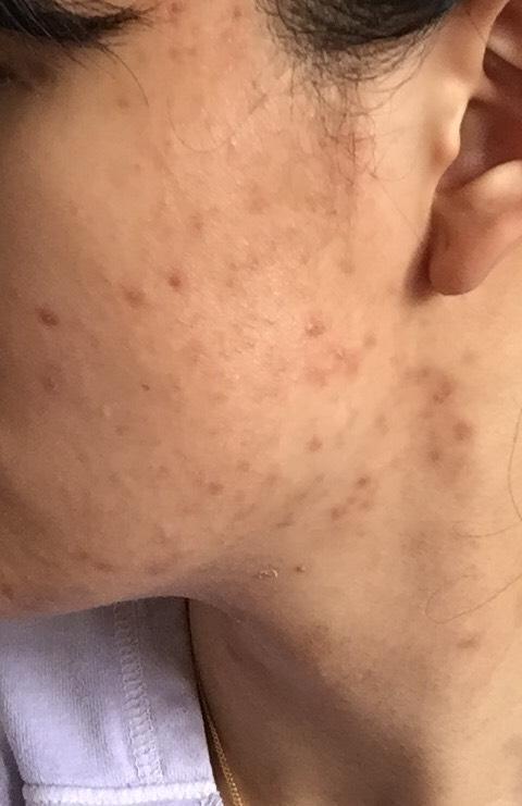 4 weeks (left side)
