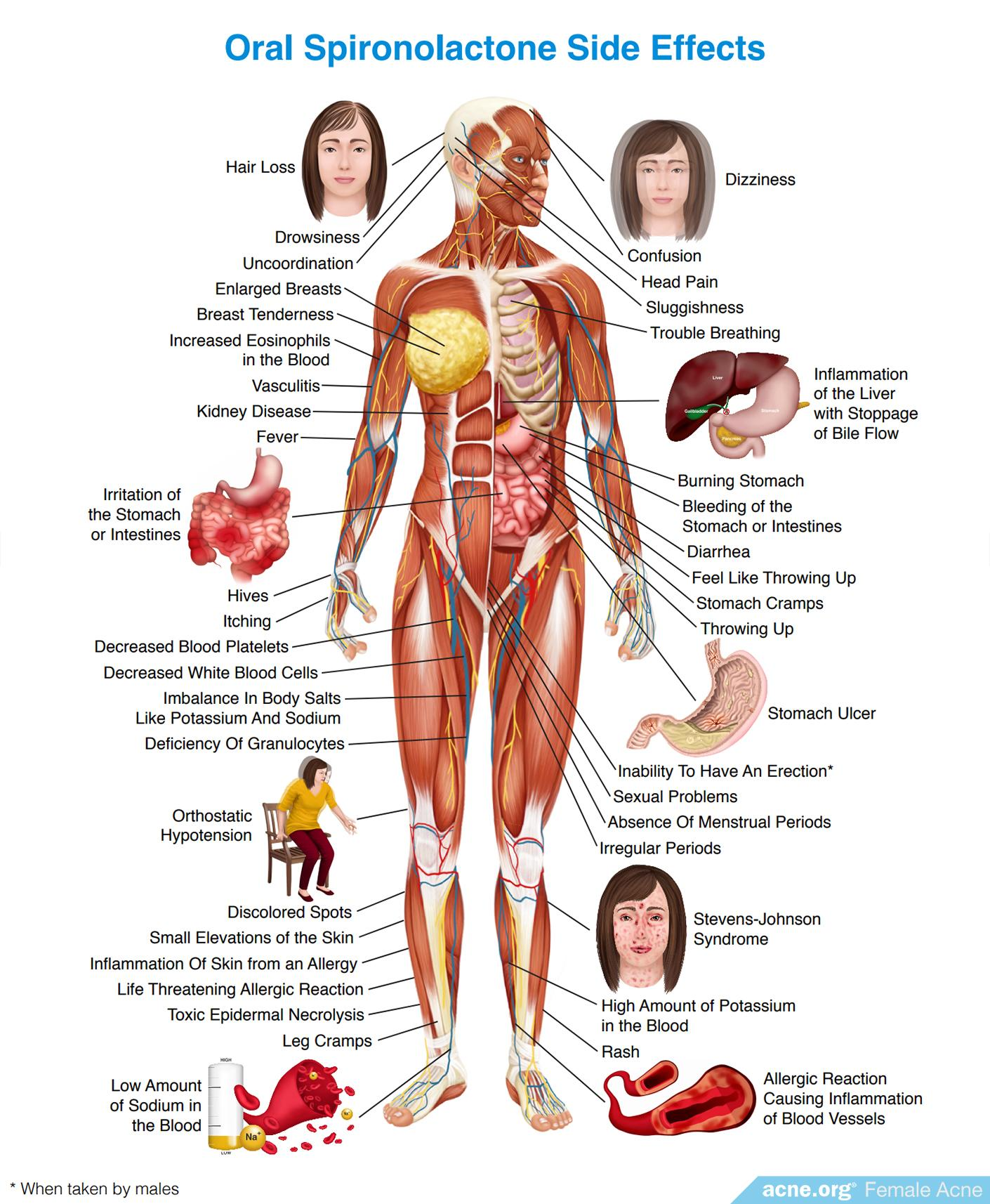 Oral Spironolactone Side Effects