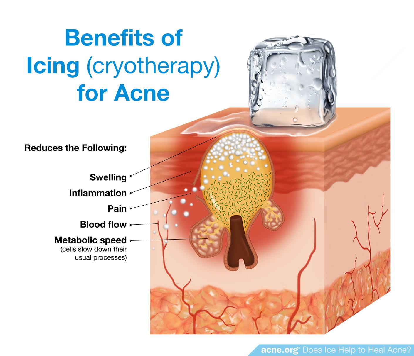 Benefits of Icing (Cryotherapy) for Acne