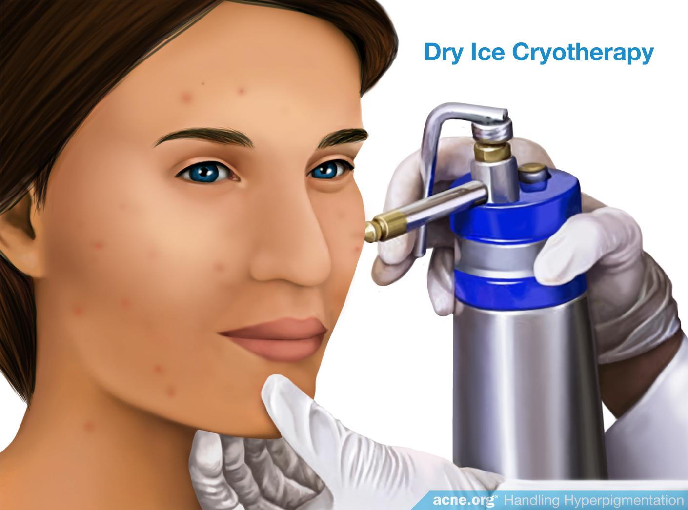 Dry Ice Cryotherapy