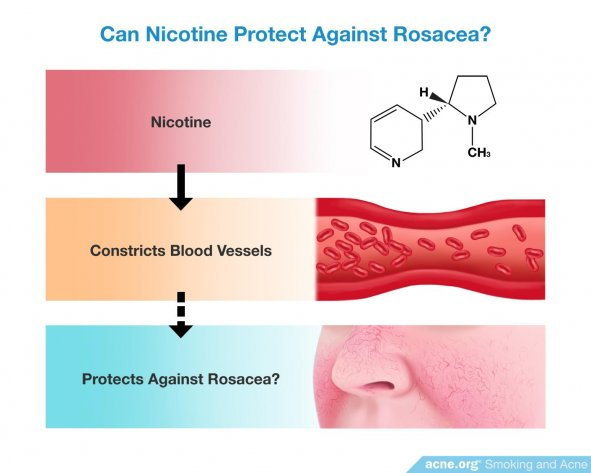 Can Nicotine Protect Against Rosacea?