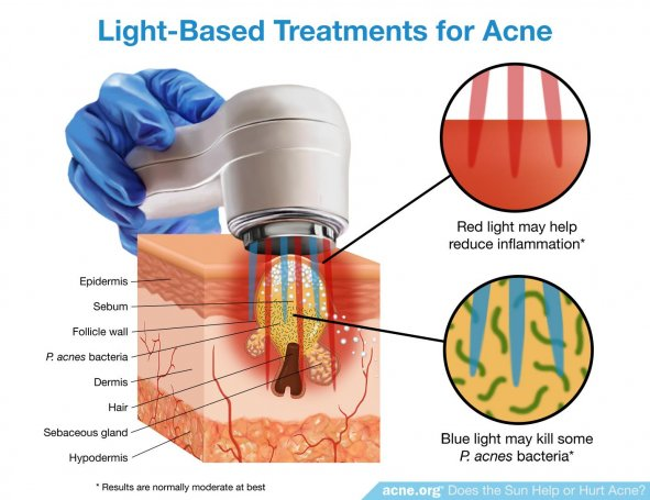 Light-Based Treatments for Acne