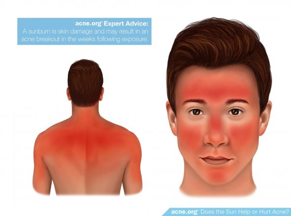 Acne.org Expert Advice: Sunburn