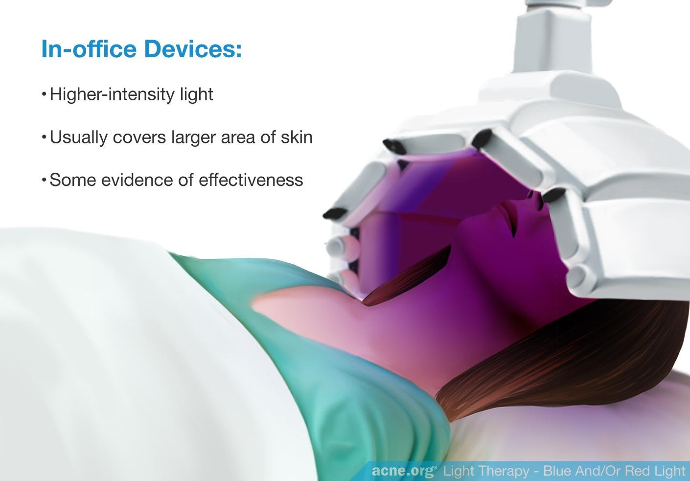 Do blue and red light devices work to clear acne acne in office light therapy devices solutioingenieria Gallery