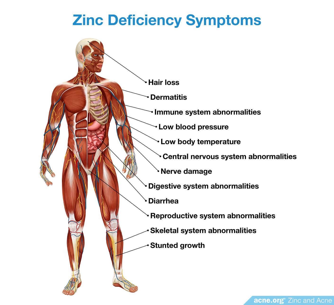 Zinc Deficiency Symptoms