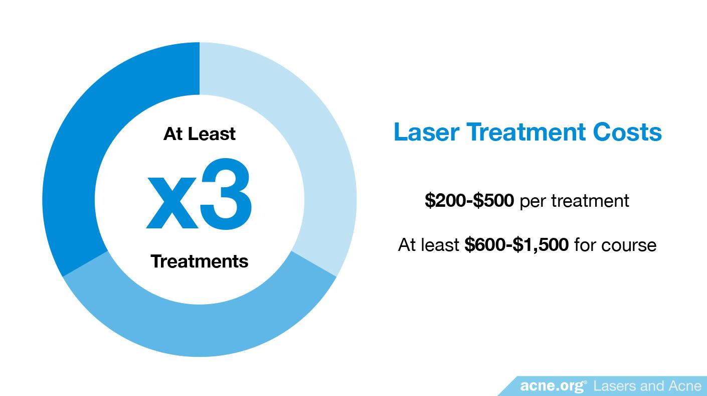 Laser Treatment Costs