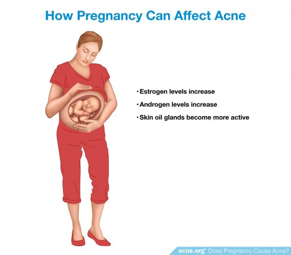 How Pregnancy Can Affect Acne