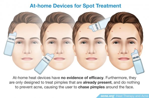 At-home Devices for Spot Treatment