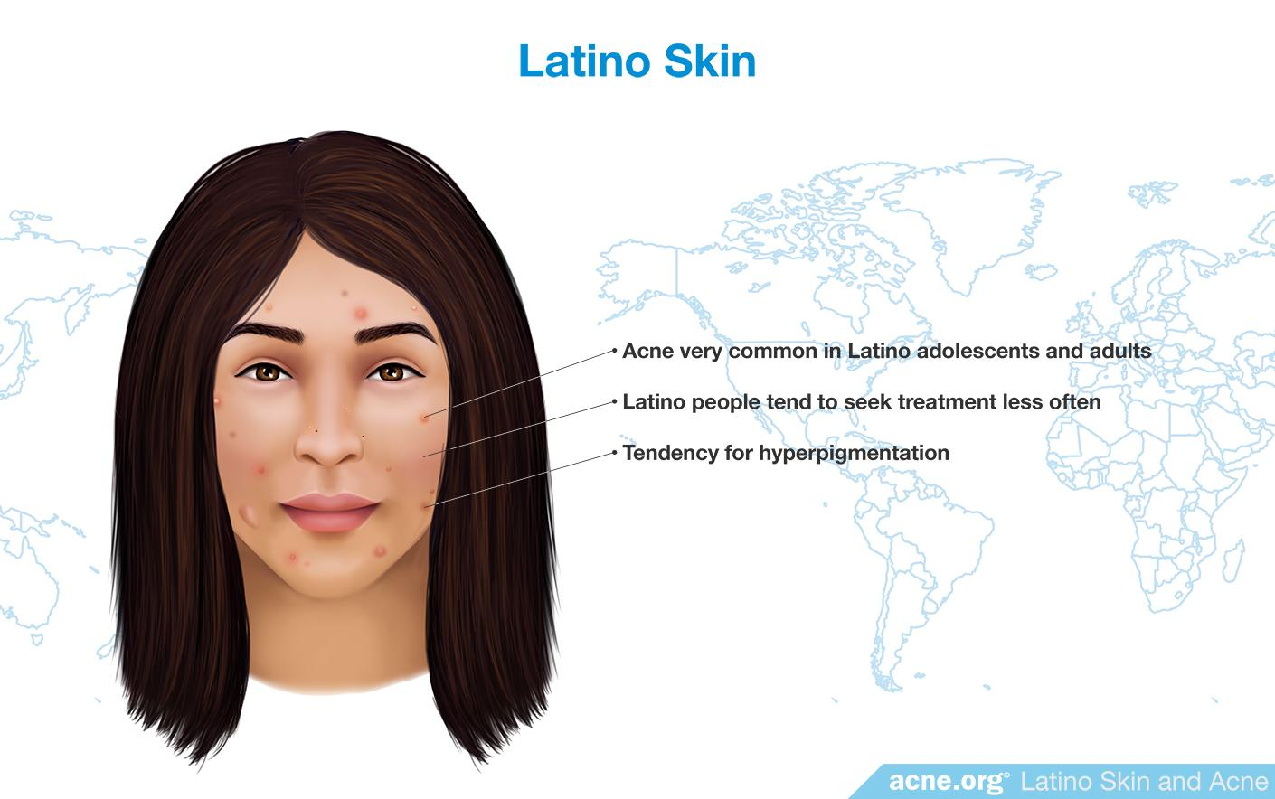 Latino Skin and Acne