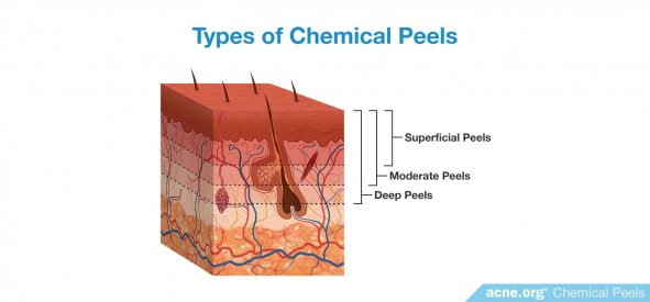 Types of Chemical Peels