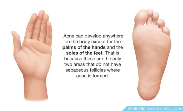 Body Acne Can Develop Anywhere