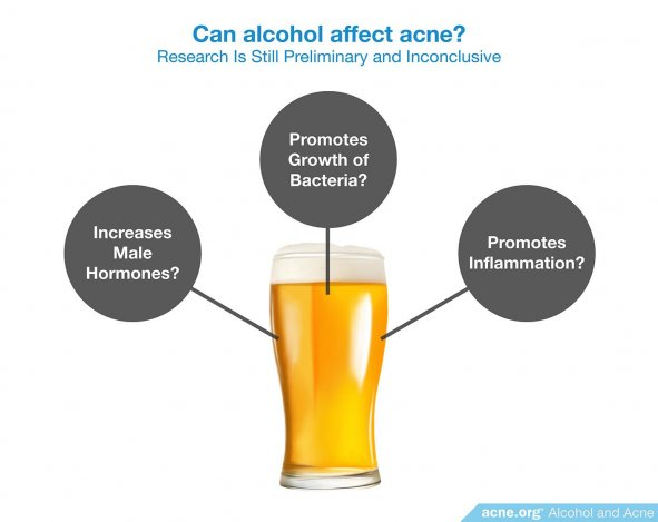 Can alcohol affect acne?