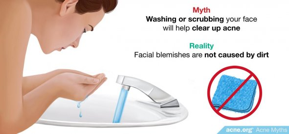 Myth: Washing or scrubbing your face will help clear up acne