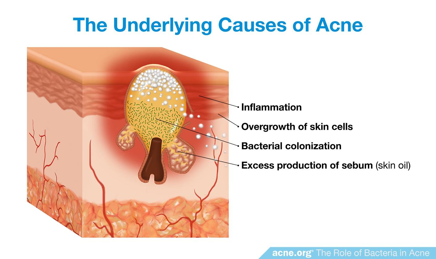 The Underlying Causes of Acne