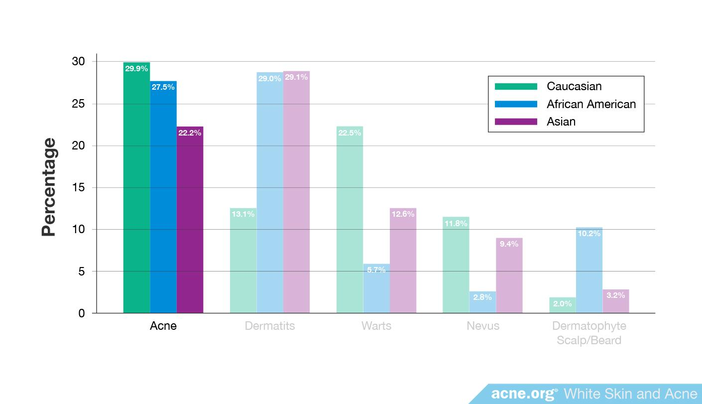 Percentage of Acne by Ethnicity