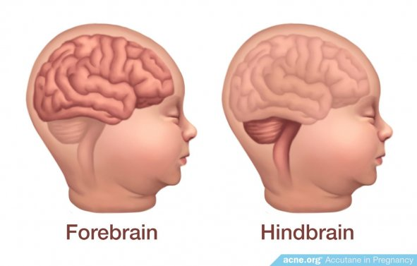 Forebrain - Hindbrain