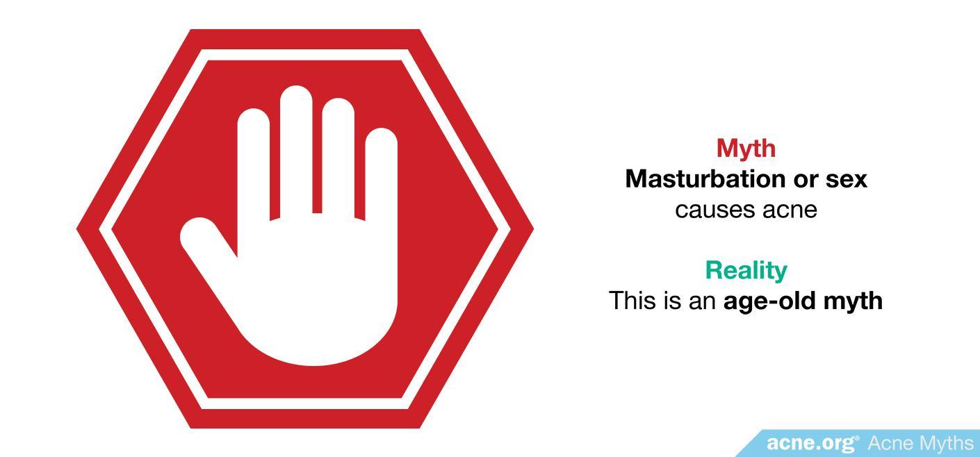 Myth: masturbation or sex causes acne