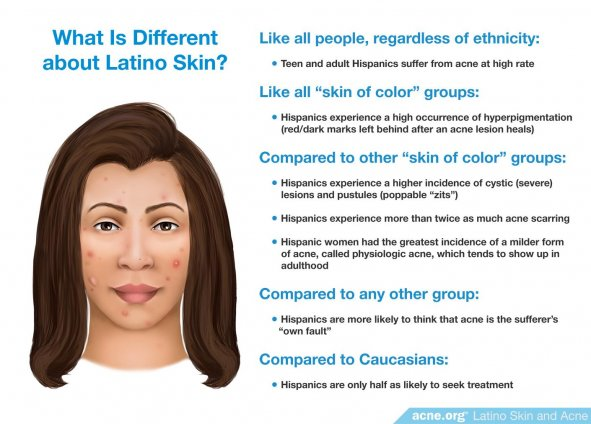 What Is Different about Latino Skin?