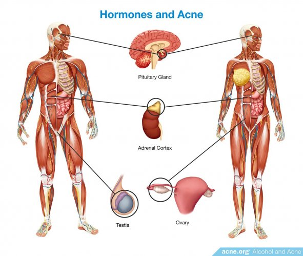 Hormones and Acne