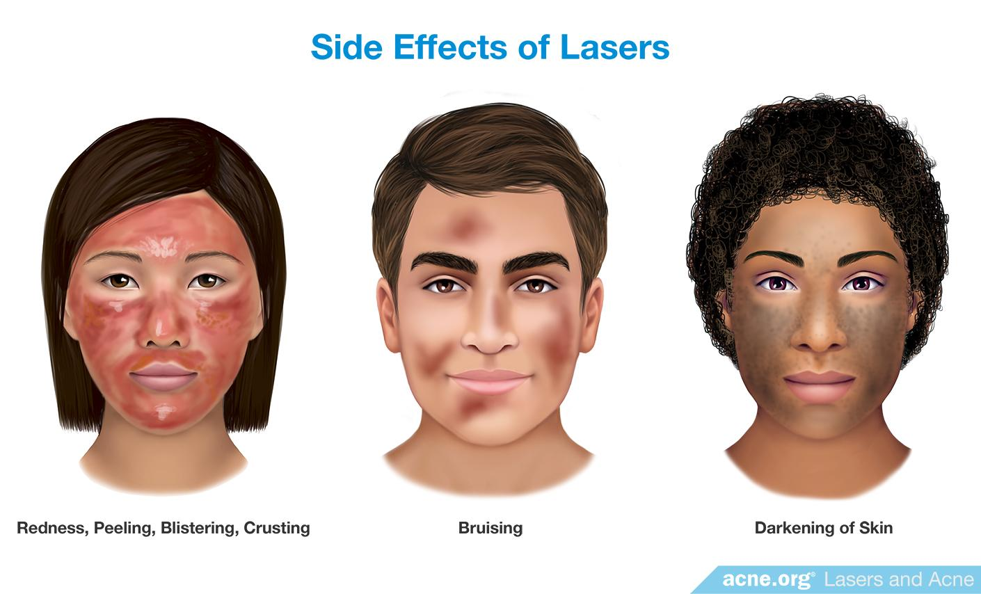 Side Effects of Lasers