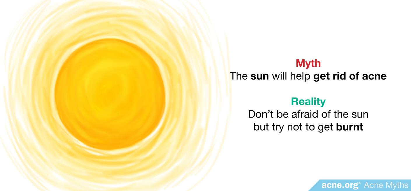 Myth: the sun will help get rid of acne
