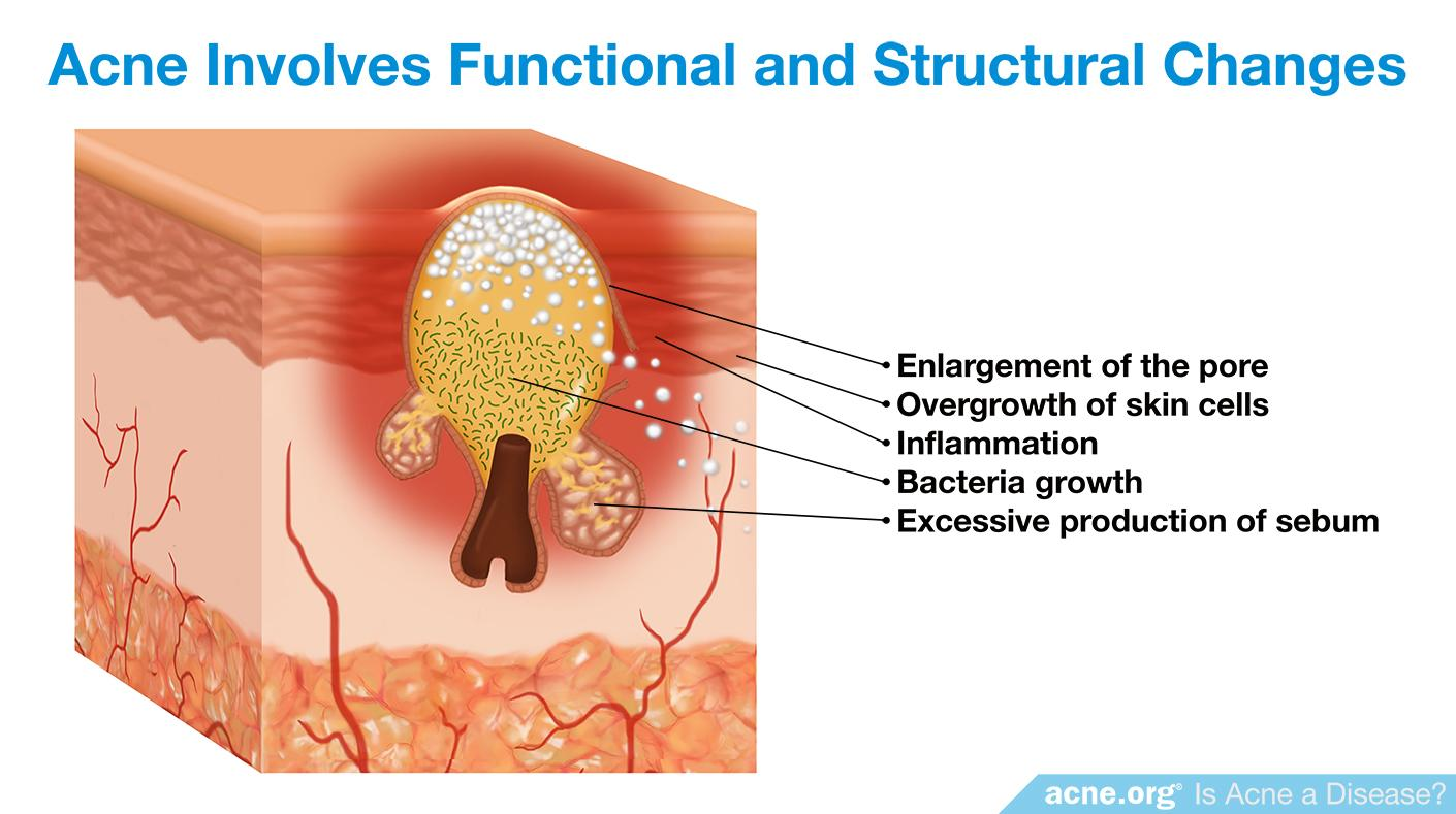 Acne Involves Functional and Structural Changes