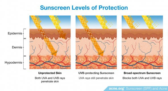 Sunscreen Levels of Protection