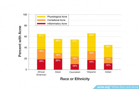 Percentage of Specific Types of Acne by Ethnicity