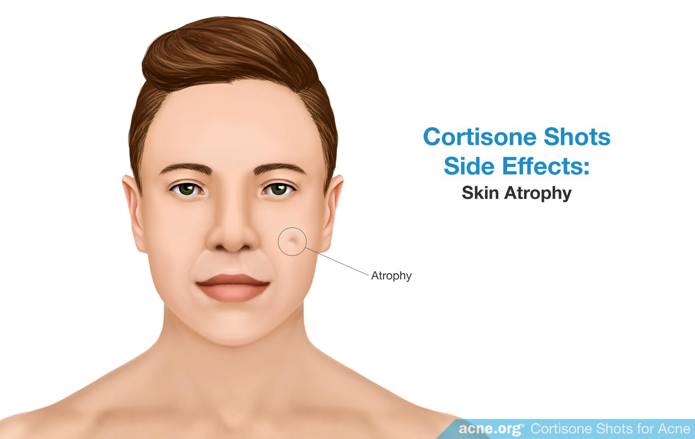 Cortisone Side Effects: Skin Atrophy