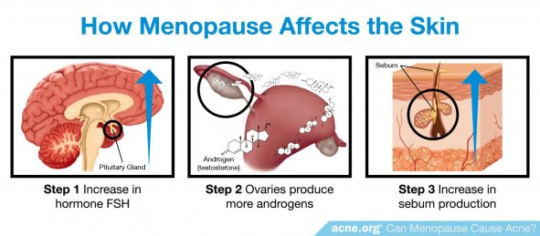 How Menopause Affects the Skin