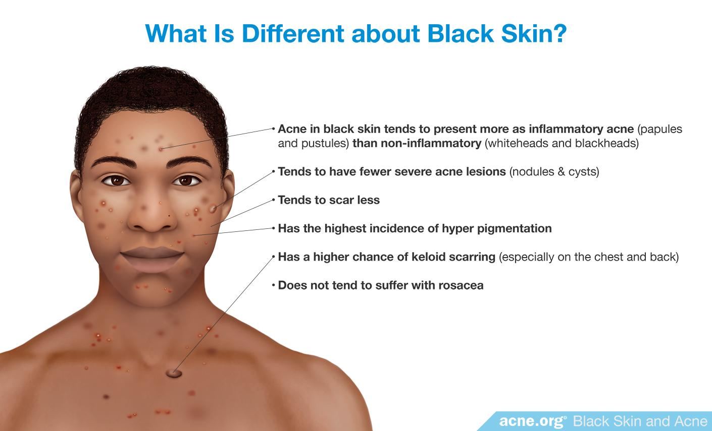 What Is Different about Black Skin?