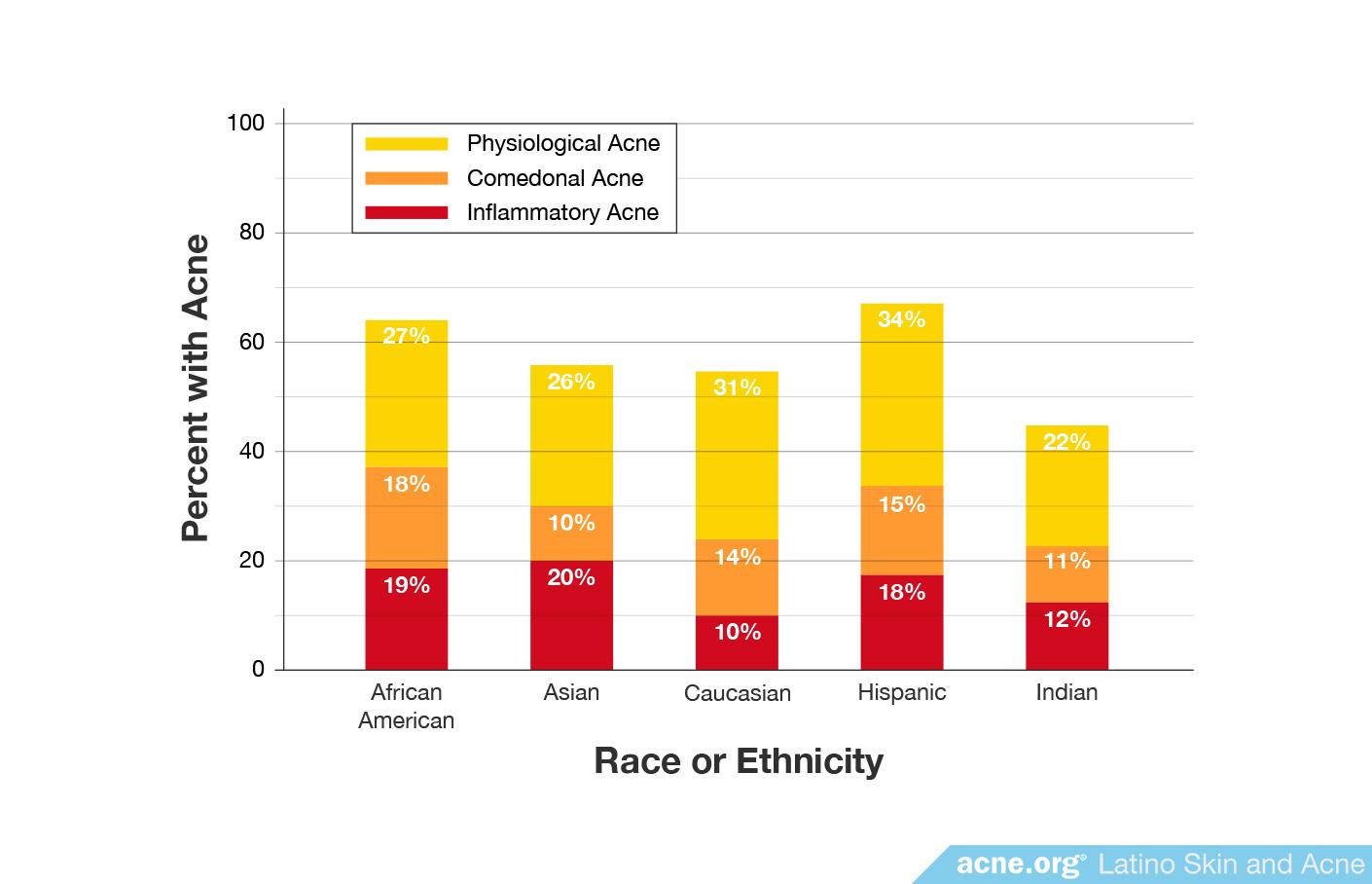 Percentage of Different Types of Acne by Ethnicity