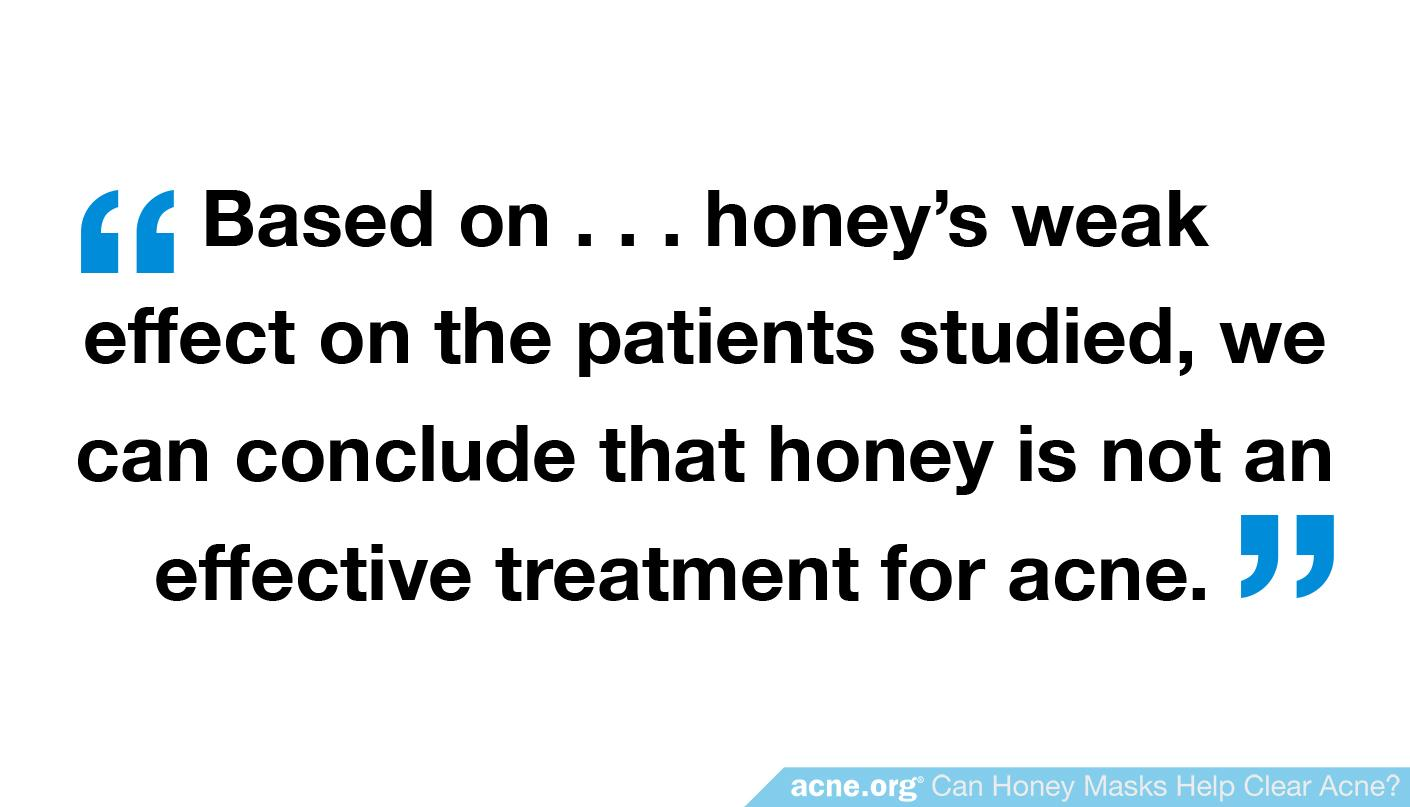 "Quote: ""...honey is not an effective treatment for acne"""