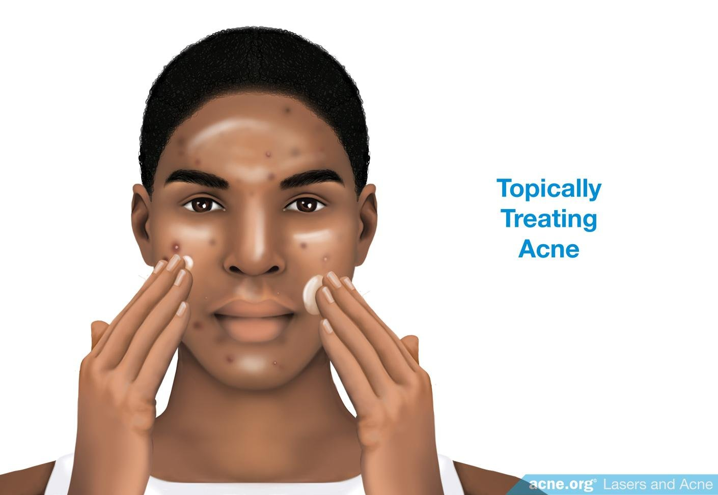 Topically Treating Acne