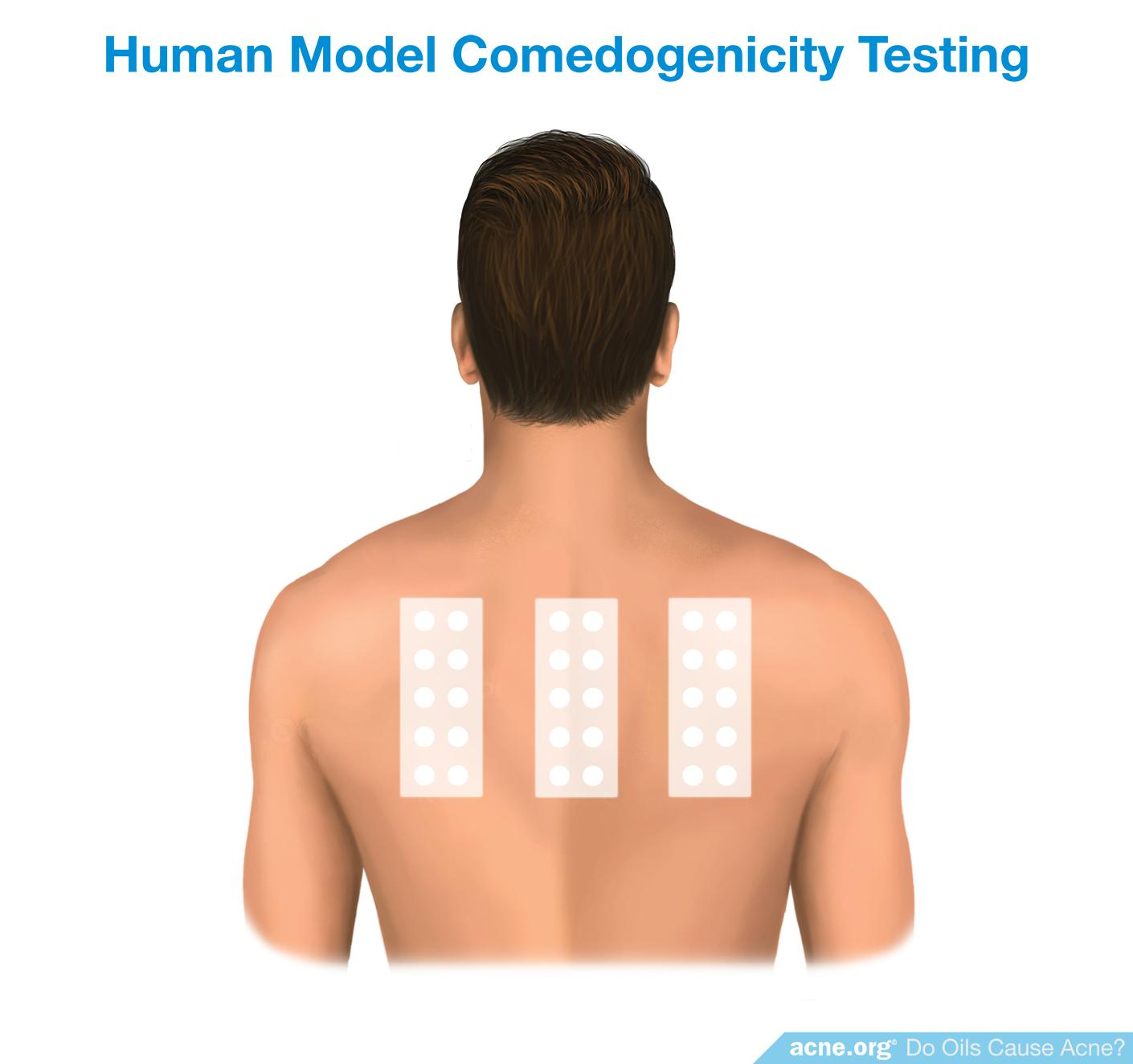 Human Model Comedogenicity Testing