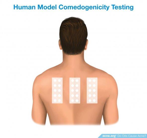 Human Model Comedogenicity Testing