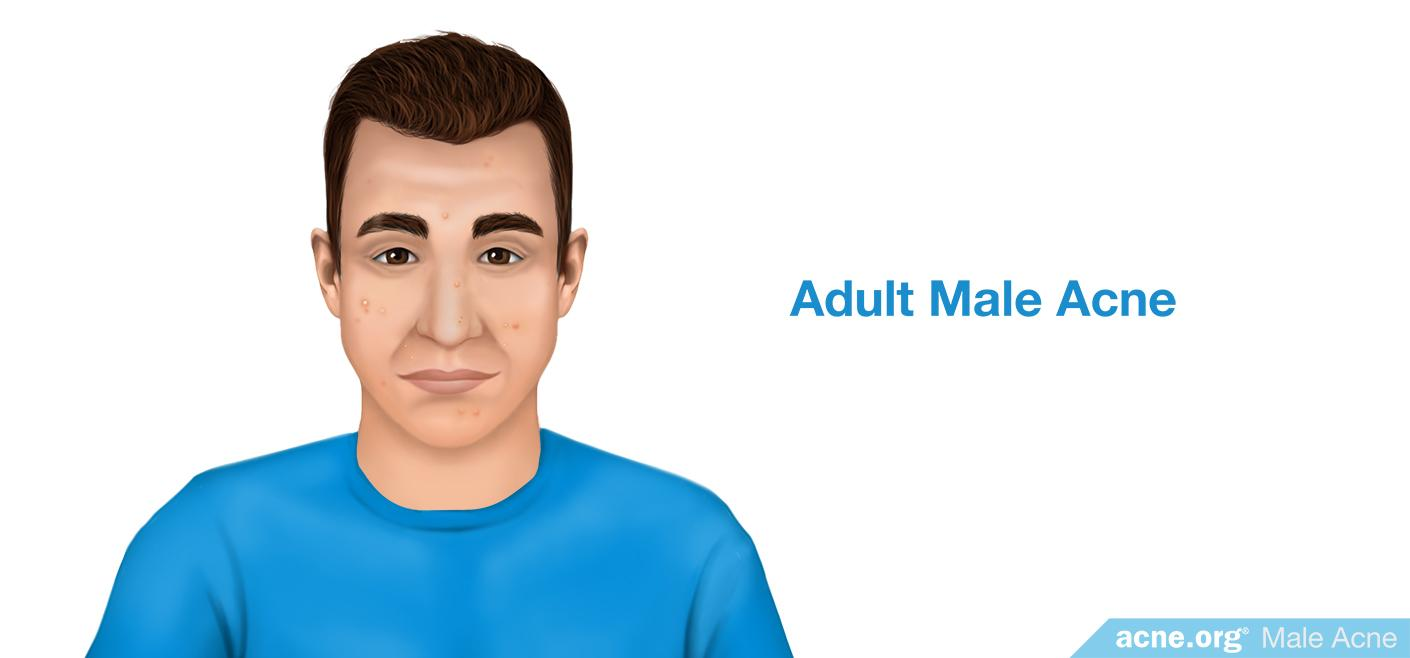 Males experience more incidence and more severe cases of acne on the back,  chest, and back of the neck. Check out the body acne and neck acne pages of  ...