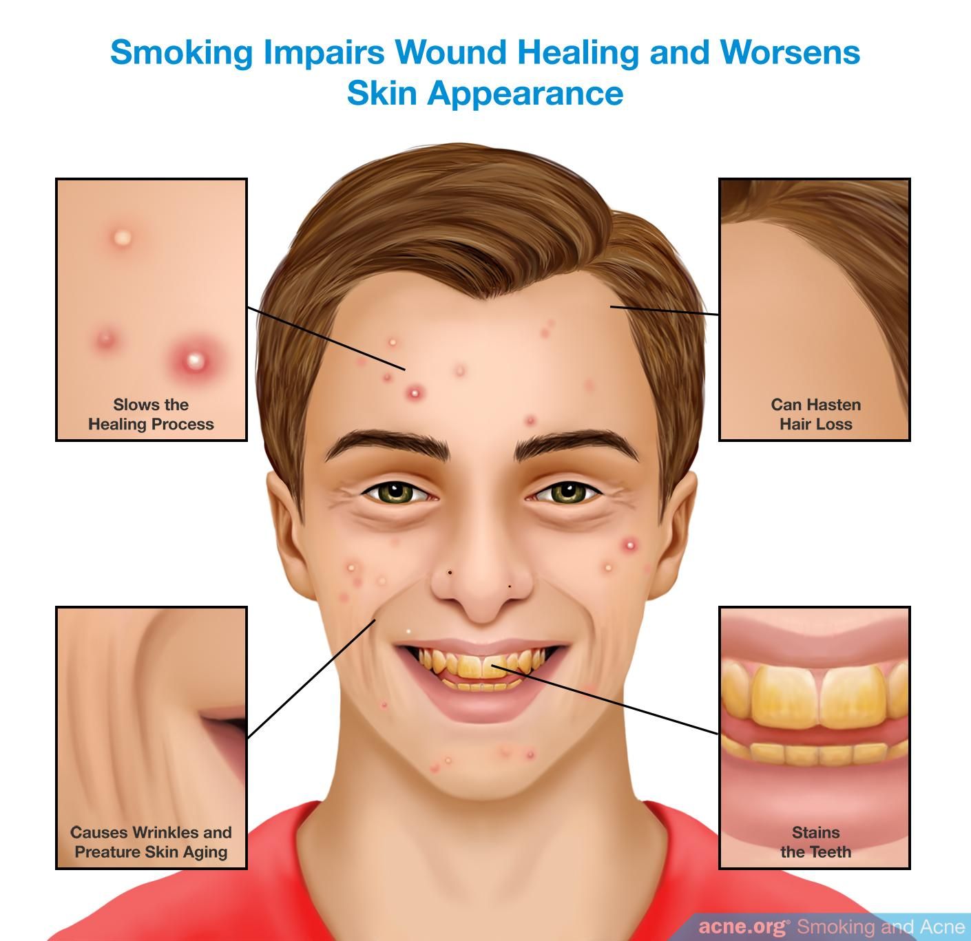 Smoking Impairs Wound Healing and Worsens Skin Appearance
